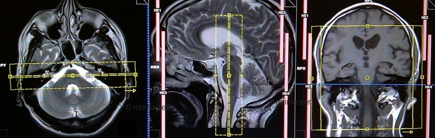internal auditory meatus(IAM'S) MRI protocols and planning of coronal t2 scans